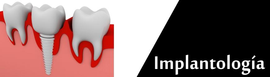 Implantes Dentales Implantología Clínica Rull