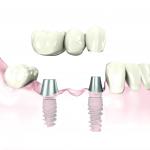 Implante de tres