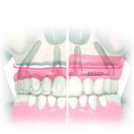 Case3max implantes