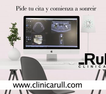 Implantes Dentales Clínica Rull